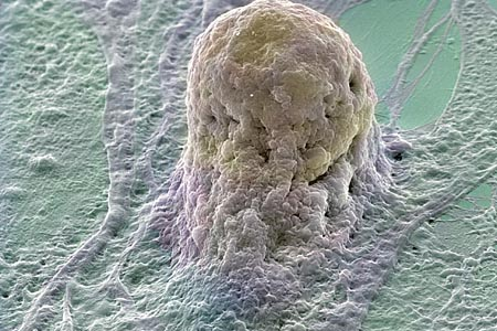 Több tucat betegségben segítenek az őssejtek