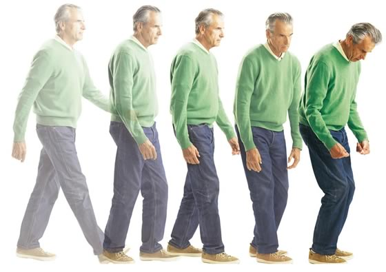 Parkinson-betegek világnapja